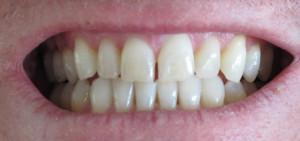čiste_zuby_2